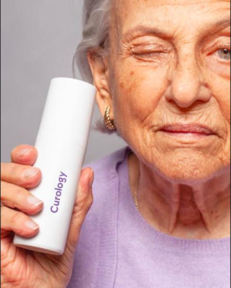 Ihon ikääntyminen ja 3 tärkeintä siihen johtavaa syytä